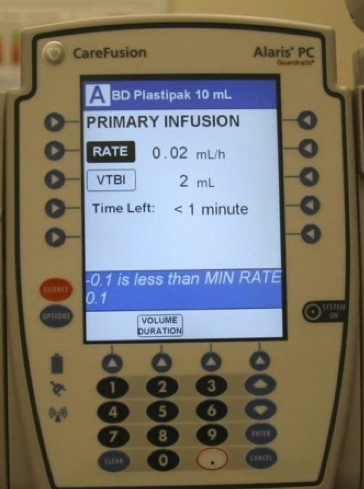 Bugs in a CareFusion infusion pump